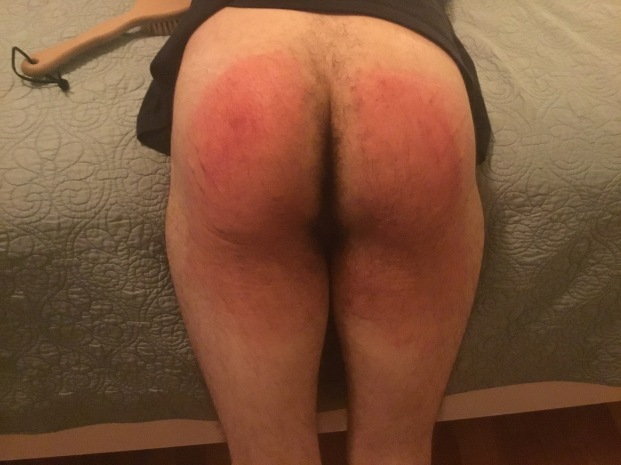 Sore Bottom!